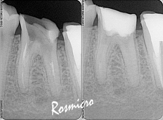Initial X-rays on the left. First visit I removed all old restorations and made a new build up with new access which was sealed with IRM. I have tried but couldn't bypass the ledge. Ca(OH)2 was placed and the patient was rescheduled for next day.