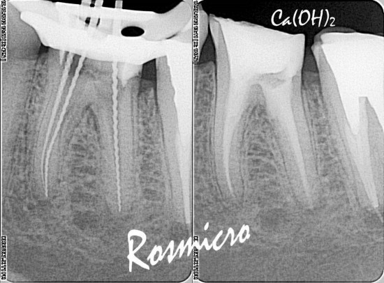 The patient was still in pain. The second visit was spent to complete the GP removal and get patency in all canals. Perforation was revealed on the furcal wall of the distal canal that probably was created during fiber post removal. All root canals were dressed with Ca(OH)2 and the access sealed with IRM