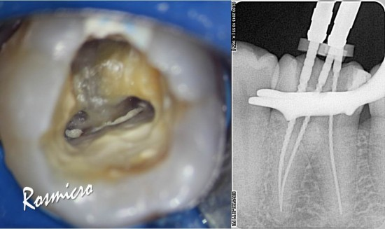 This is the view of pulp chamber and tiny orifices filed with whitish paste. It was removed easily with help of ultrasonic tip (endosonore file) and canals got patency
