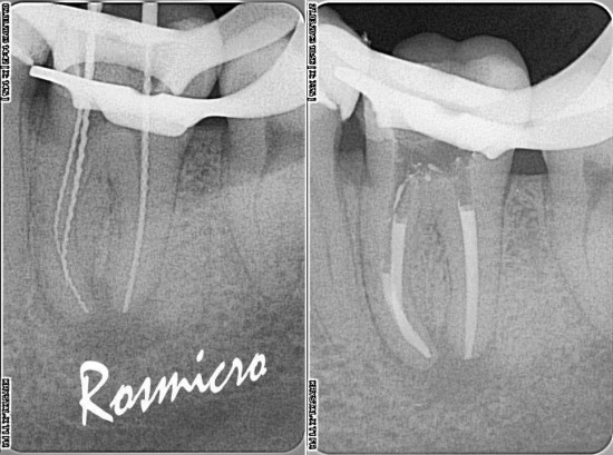 WL and obruration step X-rays