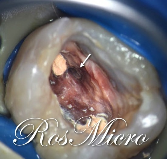 The treatment plane was to try to negotiate the MB2 canal then make an apicoectomy on premolar and to scoop out extended guttapercha of MB root of the molarThe arrow points to MB2 orifice