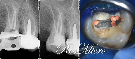 Final X-rays and pulpchamber view