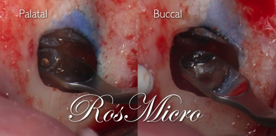 Apices view after resection and retroprep