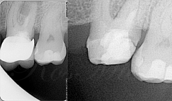 Preoperative view of periapical and in a parallel beam.