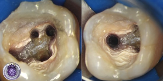 All canals were retreateв and missed MB2 found. Calcium hydroxide wqs used for 2 week dressing btw appointments