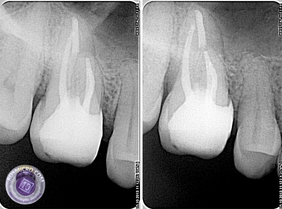 final X-rays after build up